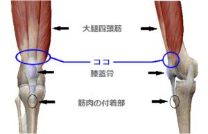 スポーツ障害 ジャンパー膝
