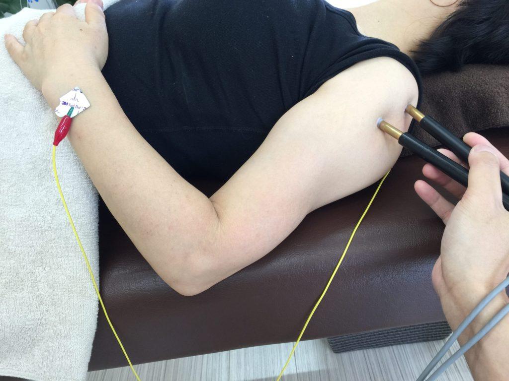 微弱電流治療筋肉