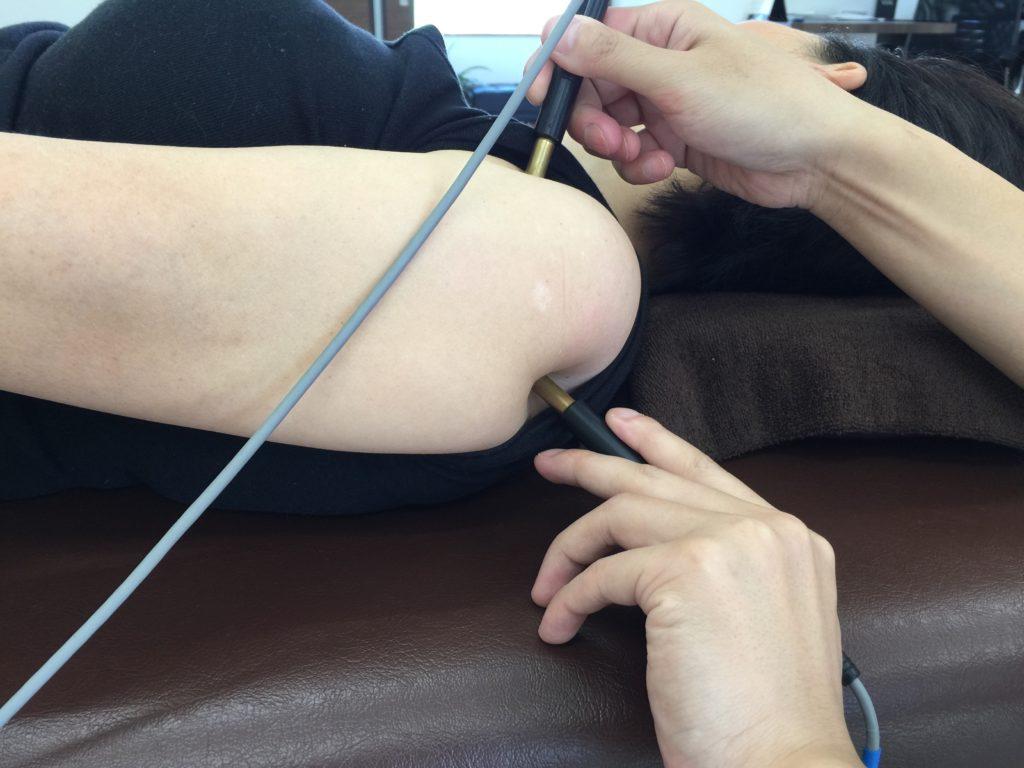 微弱電流治療関節