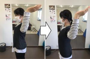 ポスチャーによる肩の動きの改善